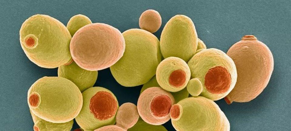 Microfotografia di Saccharomyces cerevisiae
