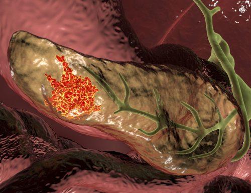 Tumore al pancreas: il dott. Dario Sannino commenta la nuova terapia con vaccino a Dna e chemioterapia.